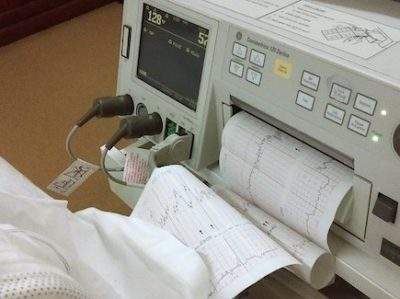 Literature for Intrahepatic Cholestasis of Pregnancy ICP
